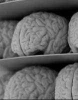 Ученые впервые увидели обезображенный вирусом Зика мозг