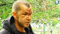 Полиция отказалась помогать избитому мужчине