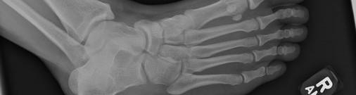 Житель Латвии со сломанным пальцем выиграл суд у Rimi