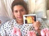 Редчайший случай: двое детей из тройни срослись в утробе матери