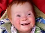 Веселый малыш с синдромом Дауна стал звездой соцсетей
