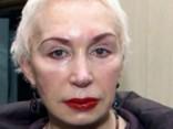 69-летней Татьяне Васильевой изменили лицо