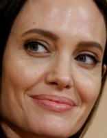 У Анджелины Джоли случился лицевой паралич после развода